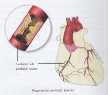 obat jantung koroner alami